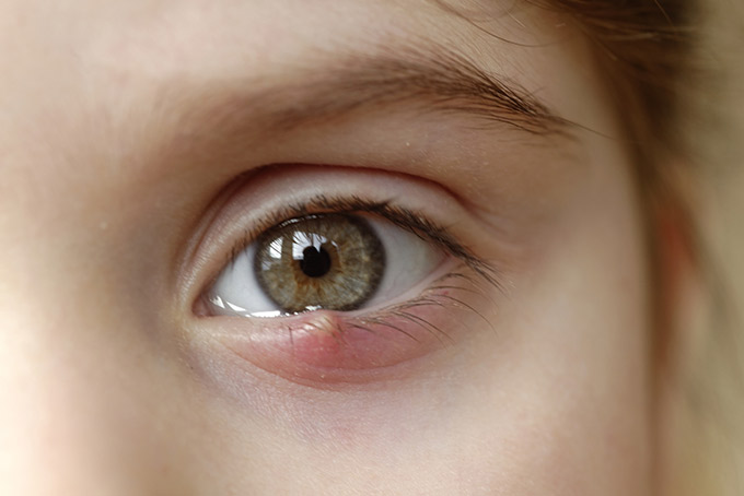 What Is A Stye How To Get Rid Of Styes Eyetech Frisco Co